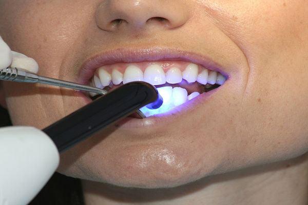 Современное стоматологическое оборудование, позволяет лечить зубы без боли