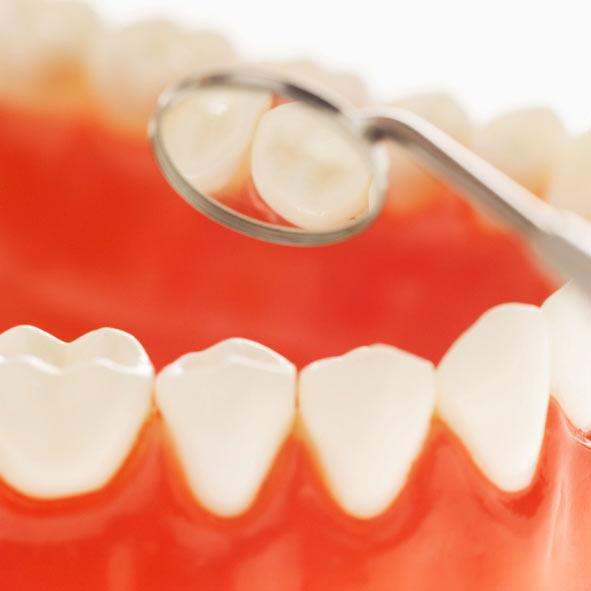 uhod-za-zubami-limonsmile-6