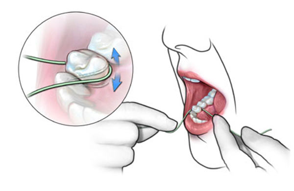 Польза зубной нити - удаление остатков пищи и налета между зубами