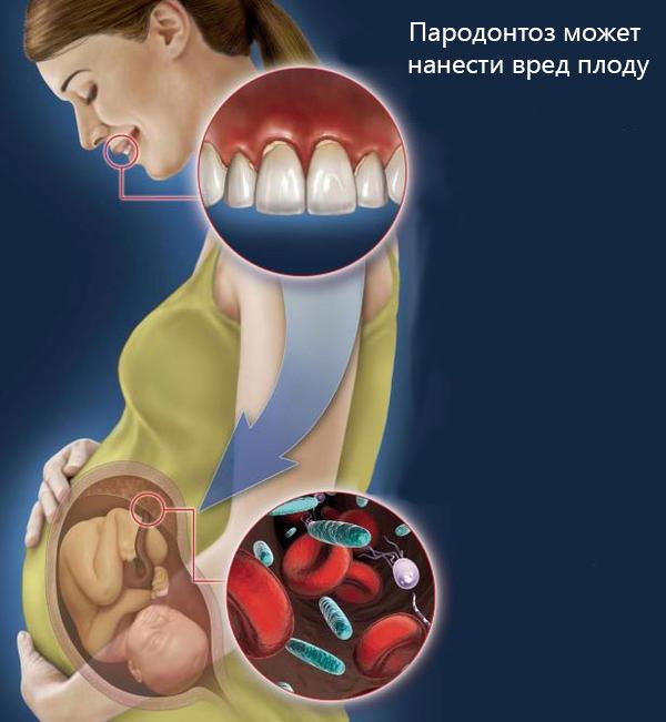 Пародонтоз сопровождается покраснением, припухлостью и кровоточивостью дёсен