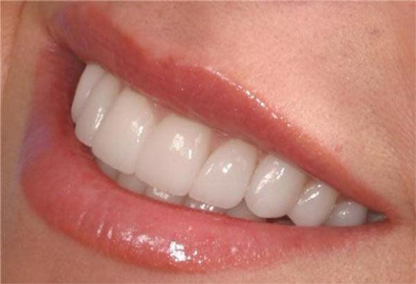 Главным плюсом металлокерамики является то, что зубы могут выглядеть более привлекательнее естественных