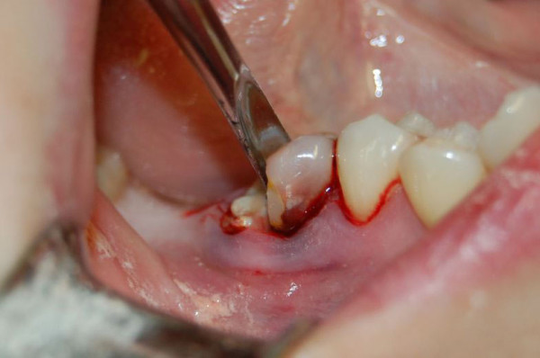 Удаление зуба мудрости фото: