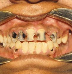 Зубы с кариесом фото