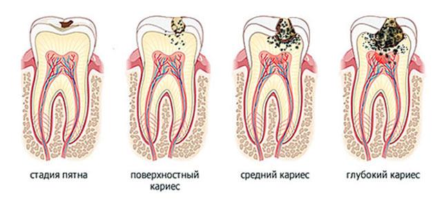 Стадии кариеса: стадия пятна, поверхностный кариес, средний кариес, глубокий кариес