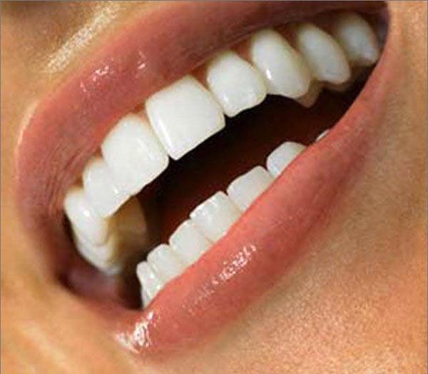 Нейлоновые протезы могут применяться при любой форме потере зубов. Это дает шанс восстановить красоту улыбки во многих случаях