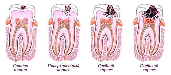 Схема «Развитие кариеса в молочных зубах»