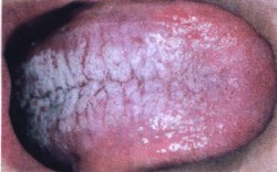 Кандидозный стоматит у ребенка фото