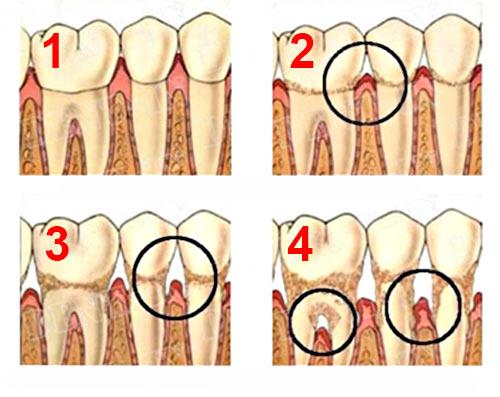 1 - Здоровые дёсны 2 - Гингивит (воспаление дёсен) 3 - Начальная стадия пародонтита 4 - Тяжёлая стадия пародонтита