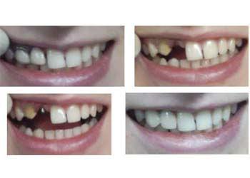 Вид зубов до и после протезирования