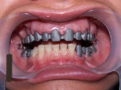 Процесс изготовки металлокерамических зубных протезов