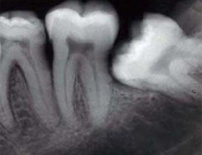 Горизонтальное расположение 3 моляра на нижней челюсти фото