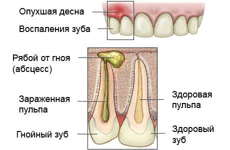 Схема формирования периостита челюсти