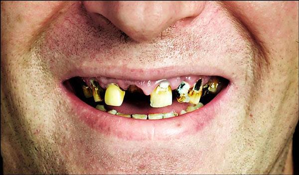 Вот что будет, если не лечить зубы. Зубы необходимо лечить, даже если этого совсем не хочется
