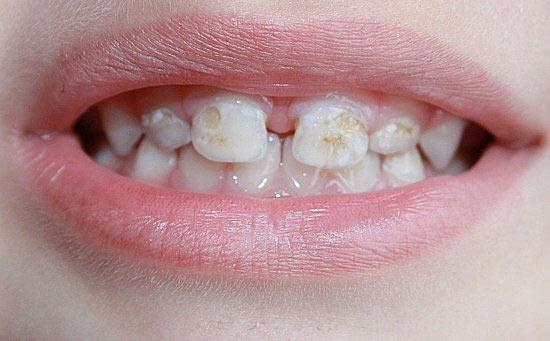 Поверхностный кариес молочных зубов фото