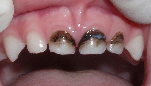 Зубы, обработанные нитратом серебра фото