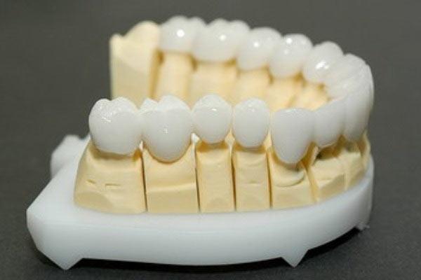 Рабочая модель нижней челюсти фото