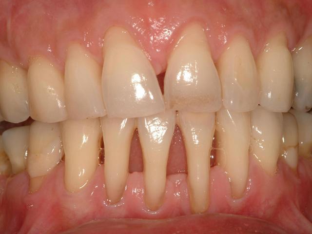 Пародонтоз 2 степени тяжести во фронтальном участке на нижней челюсти фото