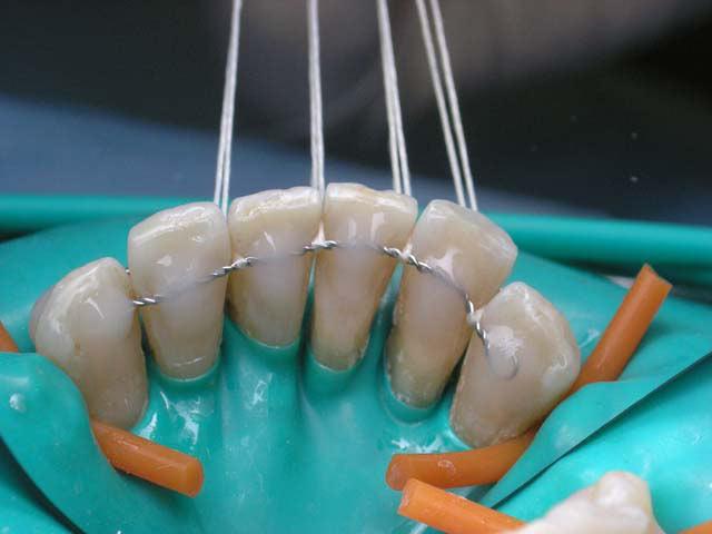 Временное шинирование зубов при пародонтозе для профилактики их выпадения фото