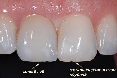 На фото видно, что визуально, практически невозможно отличить где живой зуб, а где установлена коронка