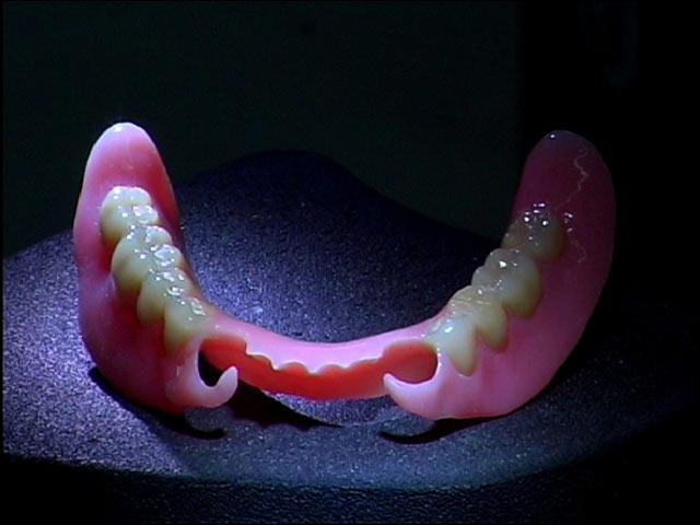 """Нейлоновые зубные протезы иногда называют """"мягкие зубные протезы"""""""