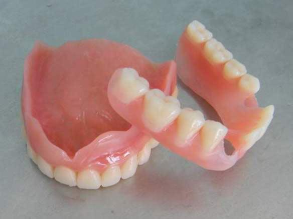 Полные съёмные протезы - для нижней и верхней челюсти